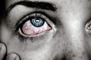 עיניים אדומות מקנאביס
